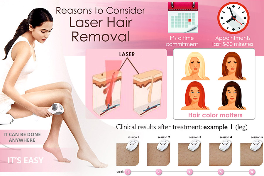 Comparison of Laser Hair Removal Systems