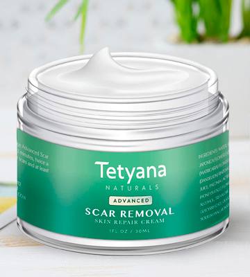 Review of Tetyana NATURALS Scar Removal Cream